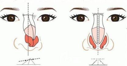 假体隆鼻出现后遗症应该怎么办呢?