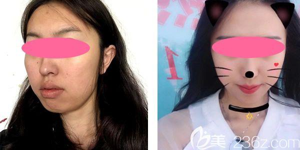 案例一:全脸线雕提升真人案例效果对比图