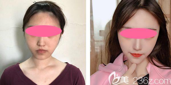案例二:脸部线雕提升真人案例效果图