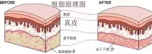 吸脂手术的原理示意图