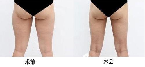 大腿吸脂术后效果图