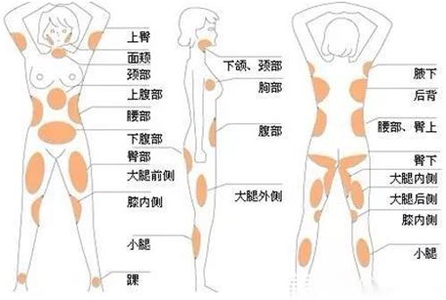 人体吸脂部位分布图