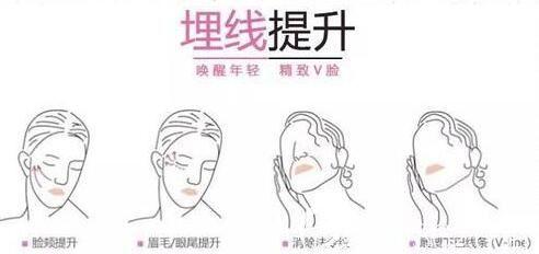 面部埋线提升能够维持多久?