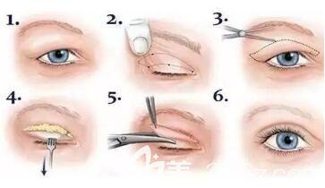 双眼皮手术过程示意图