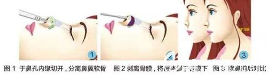假体隆鼻流程图