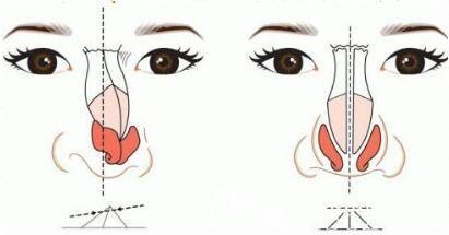 硅胶假体隆鼻可以放一辈子吗?
