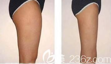 吸脂瘦大腿术前术后对比照
