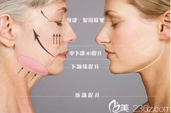面部线雕提升原理介绍