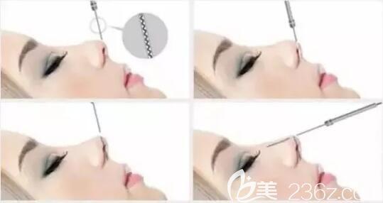 线雕隆鼻过程
