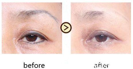 皮秒激光洗眉成功的术前术后对比照