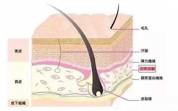 玻尿酸介绍