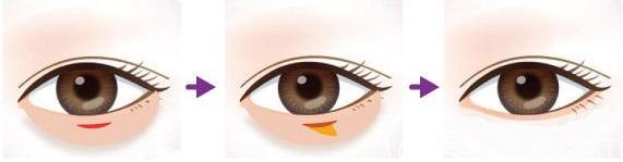 内切祛眼袋手术图