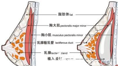 假体隆胸假体放置在胸大肌下