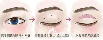 微创双眼皮是韩式定点双眼皮吗?