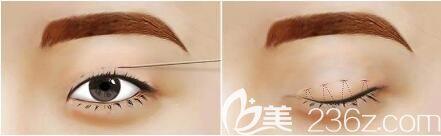 微创双眼皮是韩式定点双眼皮