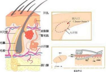 手术祛除腋臭方法
