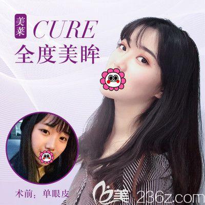 杭州美莱韩超双眼皮案例