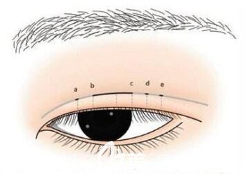 全切双眼皮多久能修复
