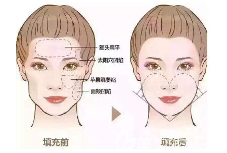 全脸脂肪填充前后对比效果图