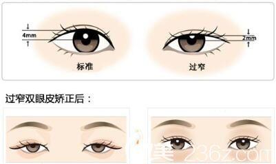 全切双眼皮修复术后注意事项