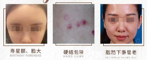 全脸脂肪填充不消肿的原因