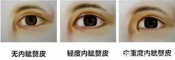 不同程度有内眦赘皮的眼睛