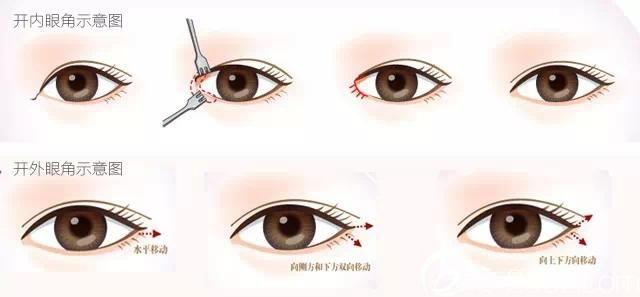 传统的开眼角手术原理