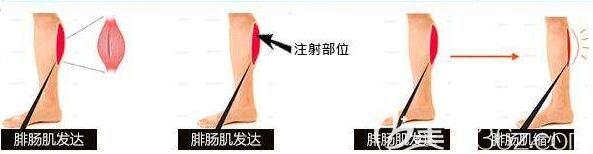 小腿神经阻断术适合人群