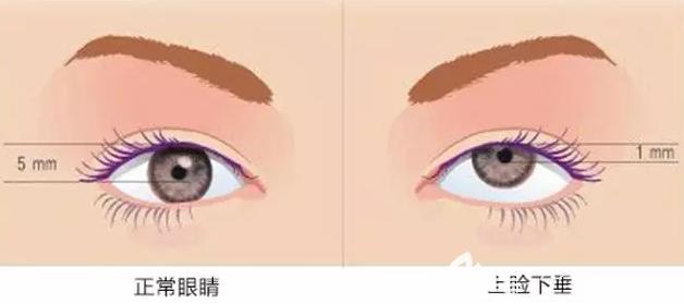 正常眼睛和上睑下垂展示图