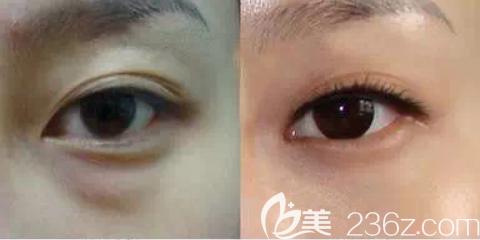 祛眼袋术前术后效果对比