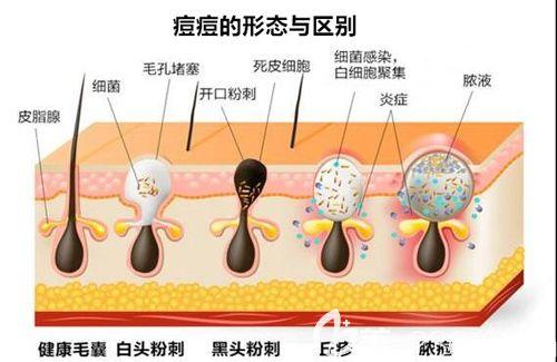 痘痘形成的具体原因以及类型