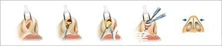 硅胶假体隆鼻手术原理