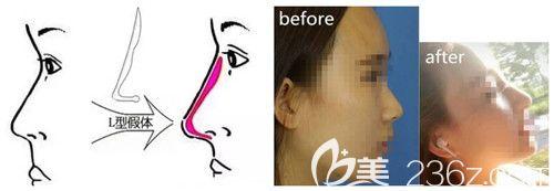 硅胶假体隆鼻手术效果好还安全