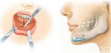 假体垫下巴手术示意图