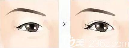 双眼皮和开眼角一起做术后效果