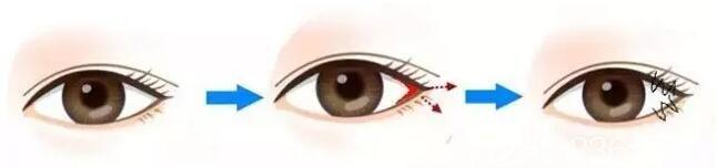 开外眼角手术原理