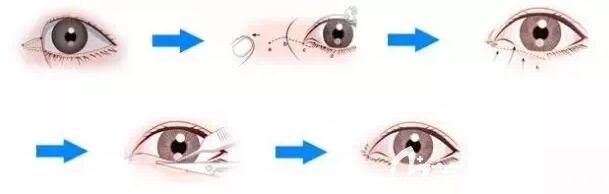 开内眼角手术原理