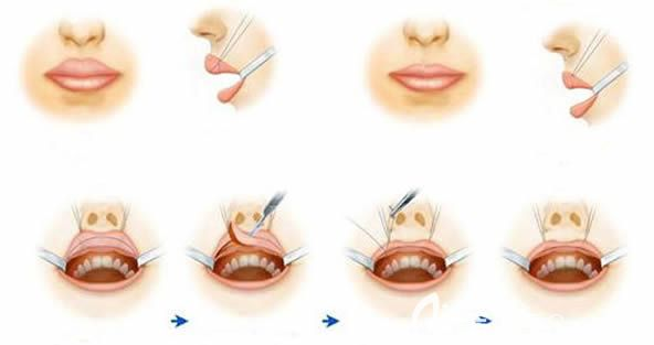 厚唇变薄术前后对比图图片