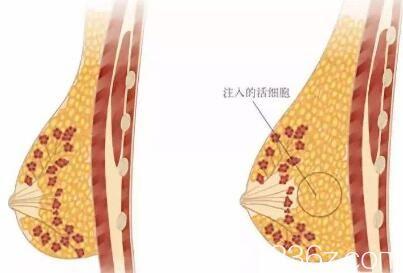 自体脂肪丰胸的方法是注入活性细胞