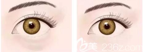 祛眼袋效果图