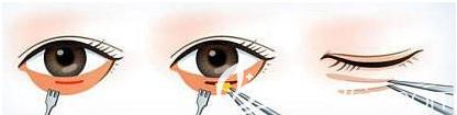 内切祛眼袋手术示意图