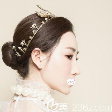 其实除了蒋思军外广州曙光刘杰伟医生做鼻子的技术也超好,不信来看我的隆鼻案例