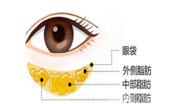 聚能美雕祛眼袋技术原理