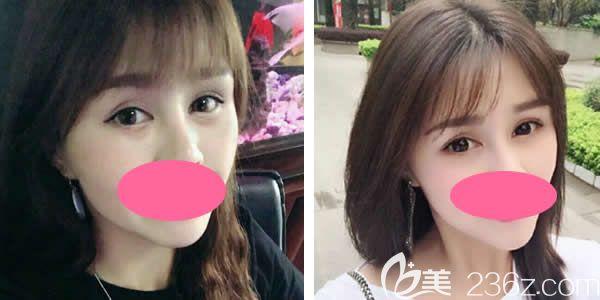 真人案例:29岁妹纸做聚能美雕祛眼袋术后一个月效果