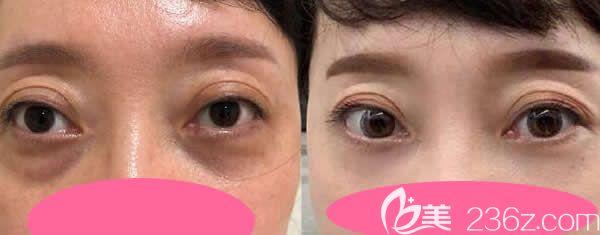 真人案例:40岁大姐做聚能美雕祛眼袋二十八天效果
