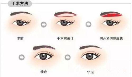 合并双眼皮手术步骤示意图