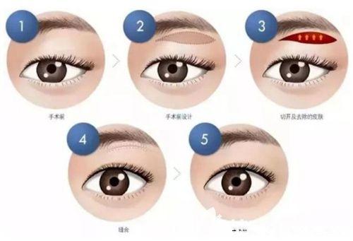 悬吊式提眉手术方法步骤图