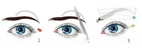 直接提眉术手术步骤简易图