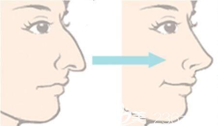 鹰钩鼻矫正后遗症