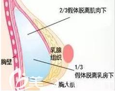 乳房假体的位置